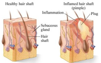hair-follicle-sebum-and-sebaceous-gland